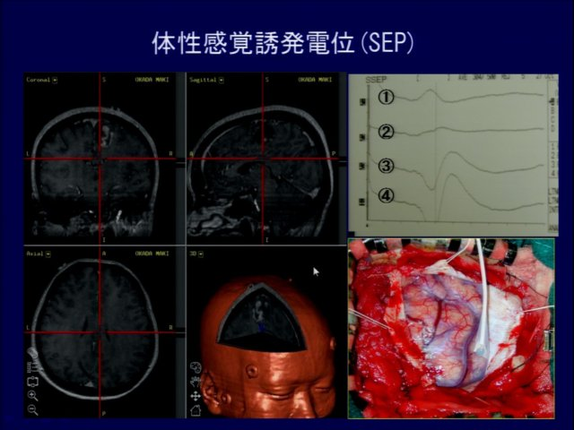 slide_0033_640_480.jpg